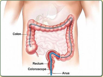 Screening Colonoscopy